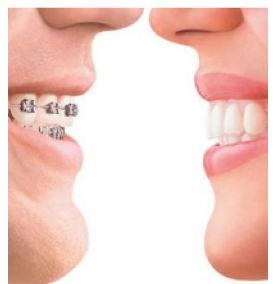 牙齿矫正价格_牙齿矫正价位