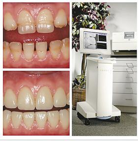 想要牙齿满口修复就来魏家口腔——魏家口腔牙齿满口修复价格范围