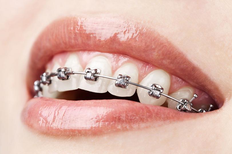 牙齿正畸公司|河北牙齿正畸专业机构