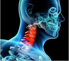 如何治疗颈椎病方法得了颈椎病怎么办怎么治疗
