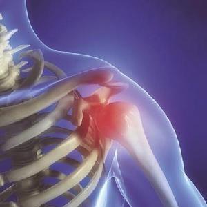 得了肩周炎怎么治疗如何治疗肩周炎