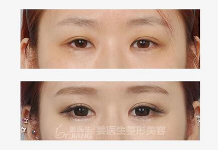 高效的双眼皮手术推荐——临夏祛眼袋