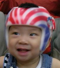 婴儿头型矫正头盔价格,专业的婴儿头盔創健供应